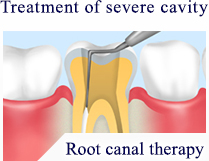Treatment of severe cavity Root canal therapy